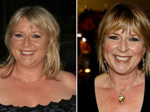 Fern Britton Gastric Band